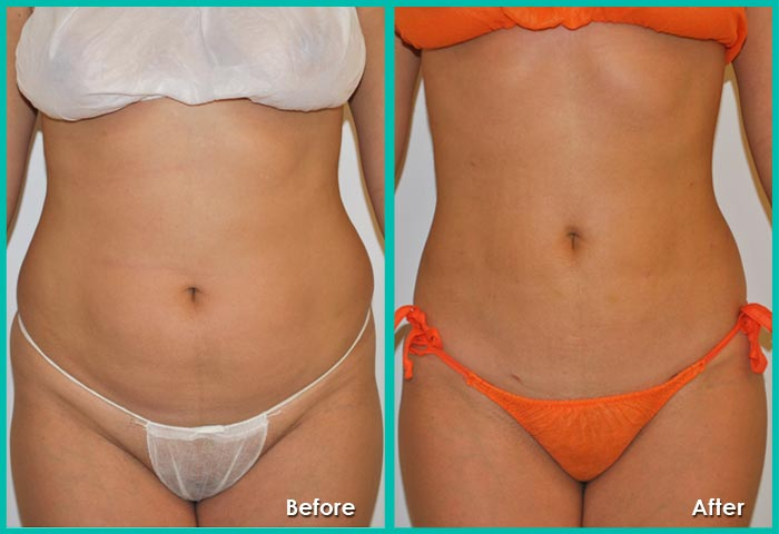 Tummy Tuck Surgery Abdominoplasty In Jaipur Rajasthan